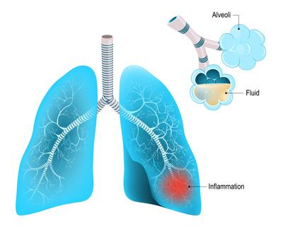 symptômes pneumonie