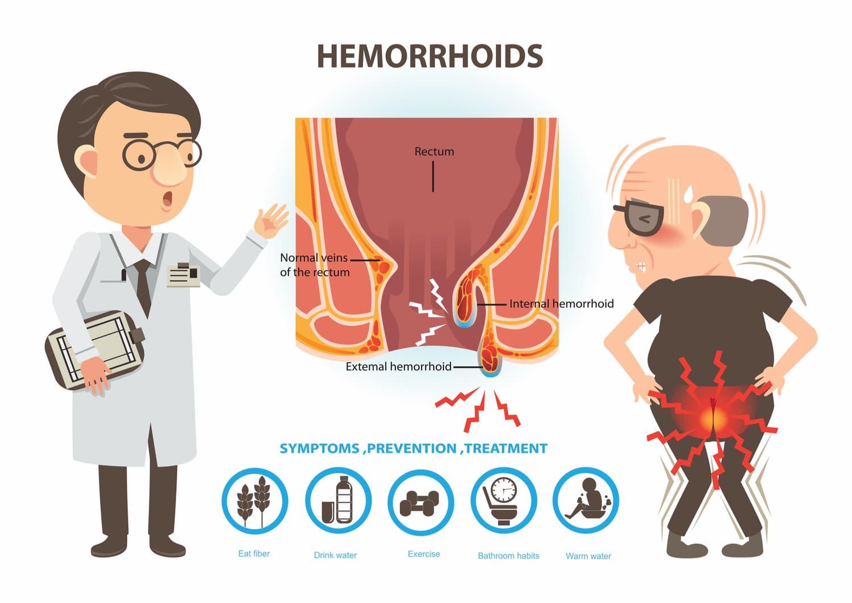 hémorroïde seniors