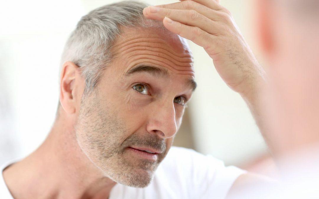 La greffe de cheveux : y a-t-il un âge pour en faire ?