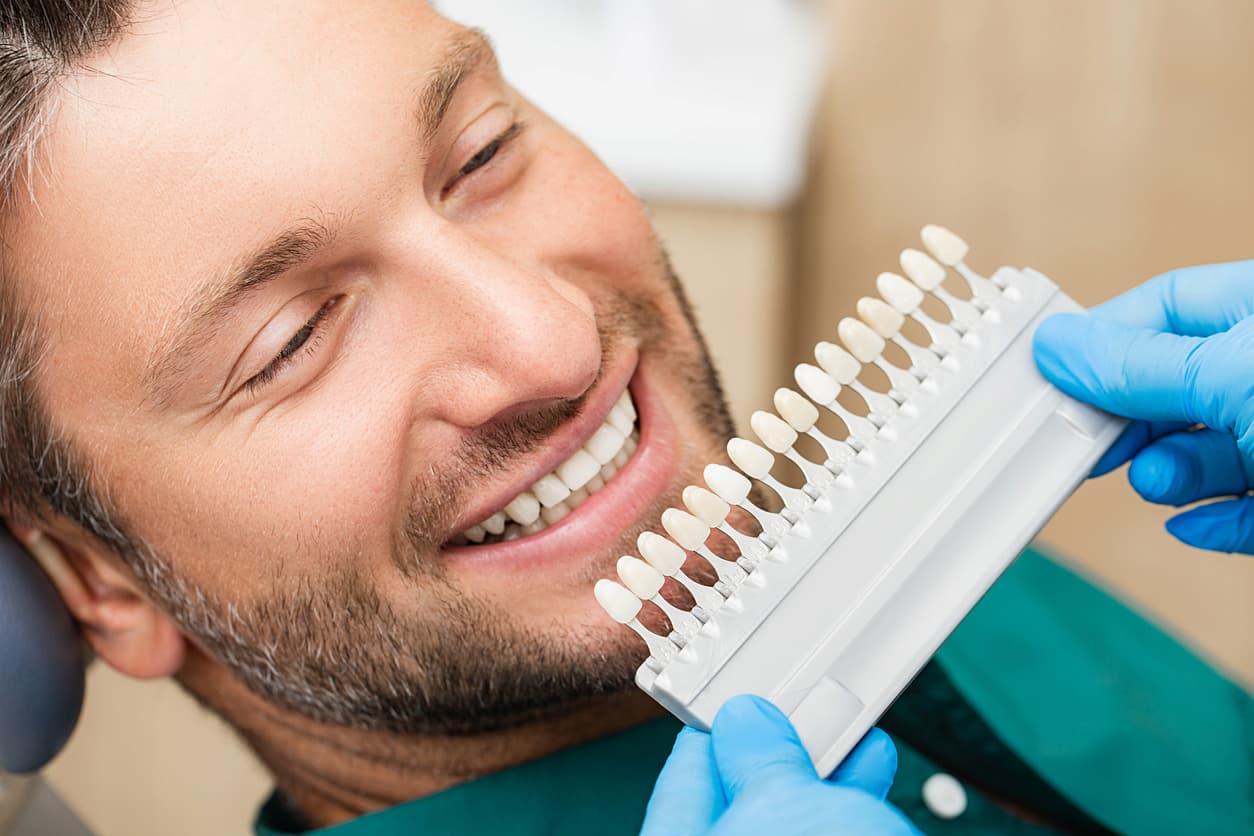 inconvénients facettes dentaires