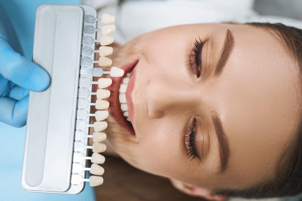 facettes dentaires durée entretien